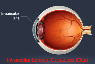 Intraocular Lens - Information  On Crystalens Accommodating Intraocular Lens IOL